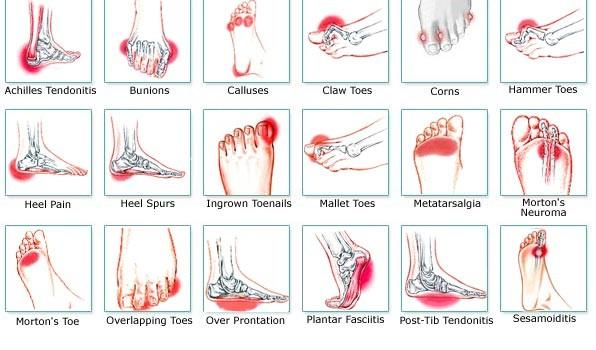 foot-pain-chart