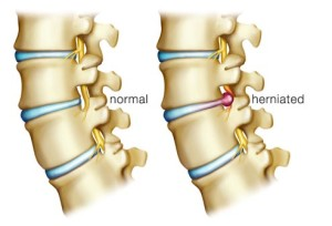 herniated-disc