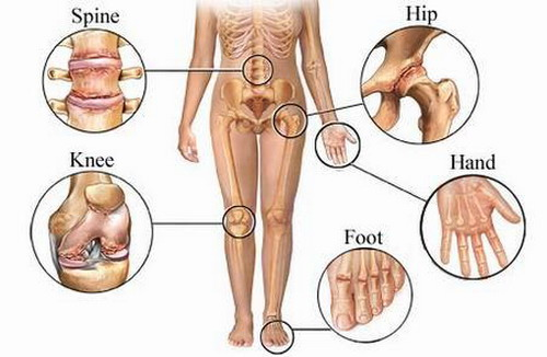 joint-pain-symptoms